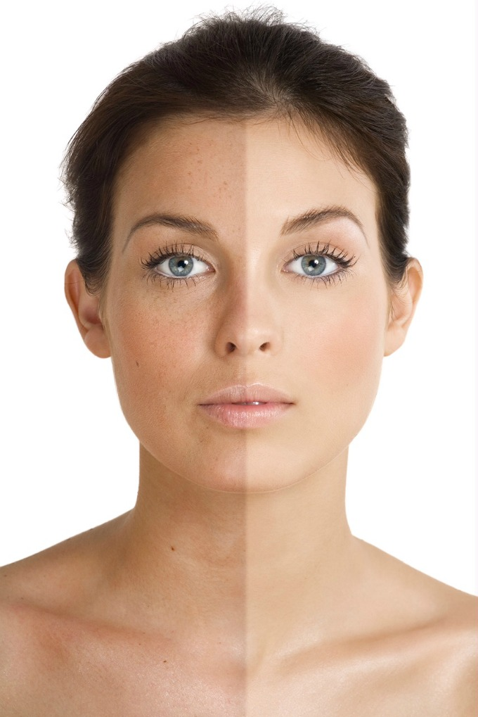 "Changes in skin pigmentation, or ""facial spotting,"" have two major culprits: sun damage and aging."