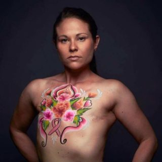 Jamie Kastelic | breast cancer survivor