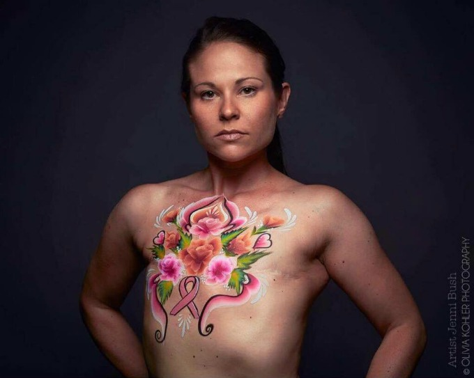 Jamie Kastelic - breast cancer survivor